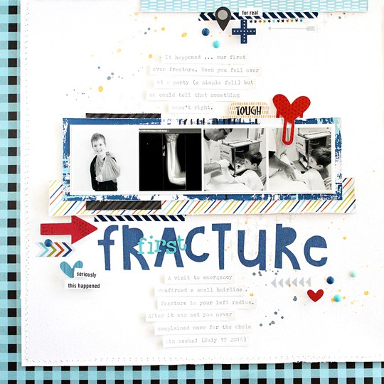 Fracture original